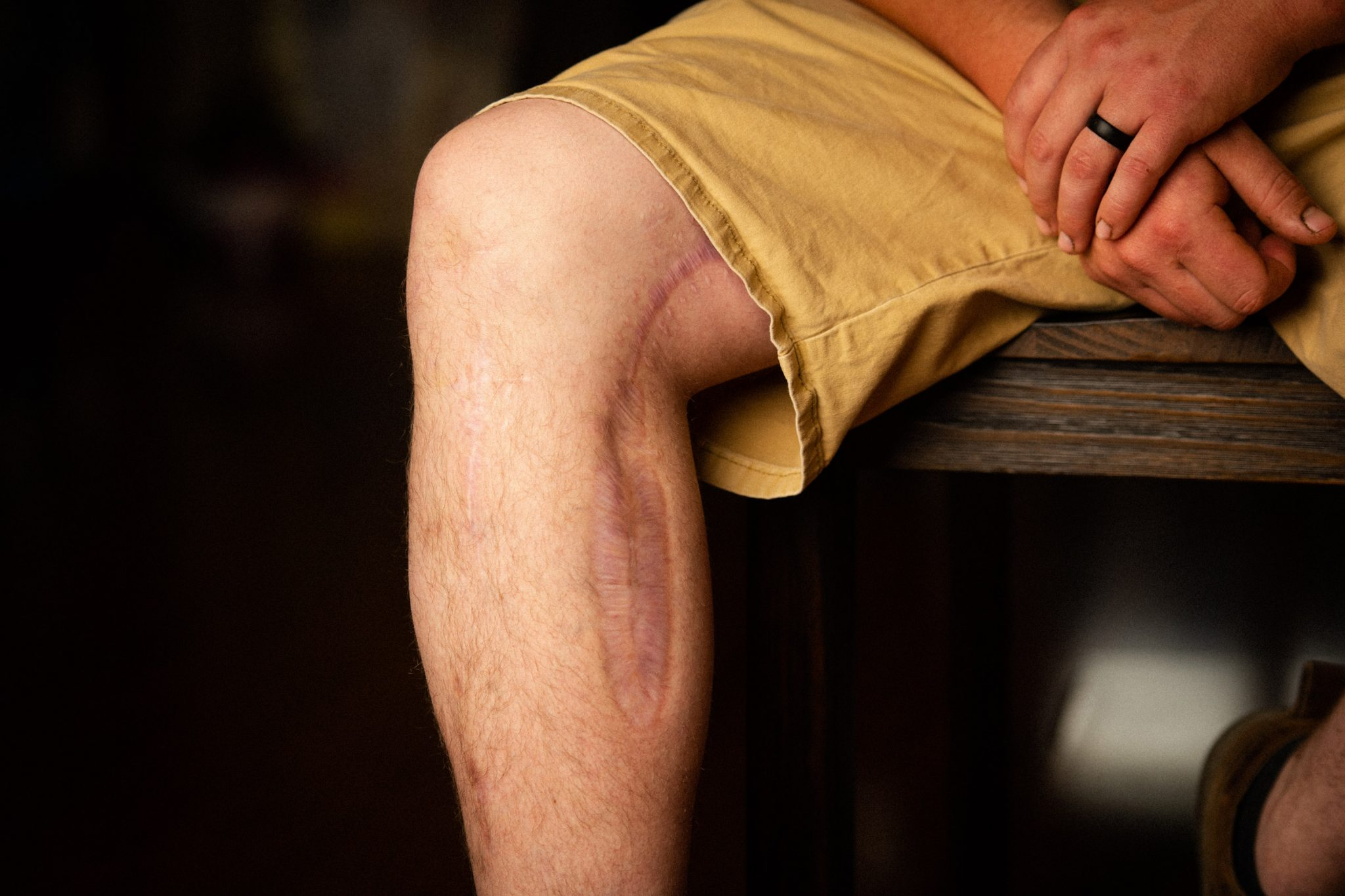 Close up of Caleb's knee and calf. A very long, deep scar runs the length of the side of his leg from all the reconstructive surgeries he had.