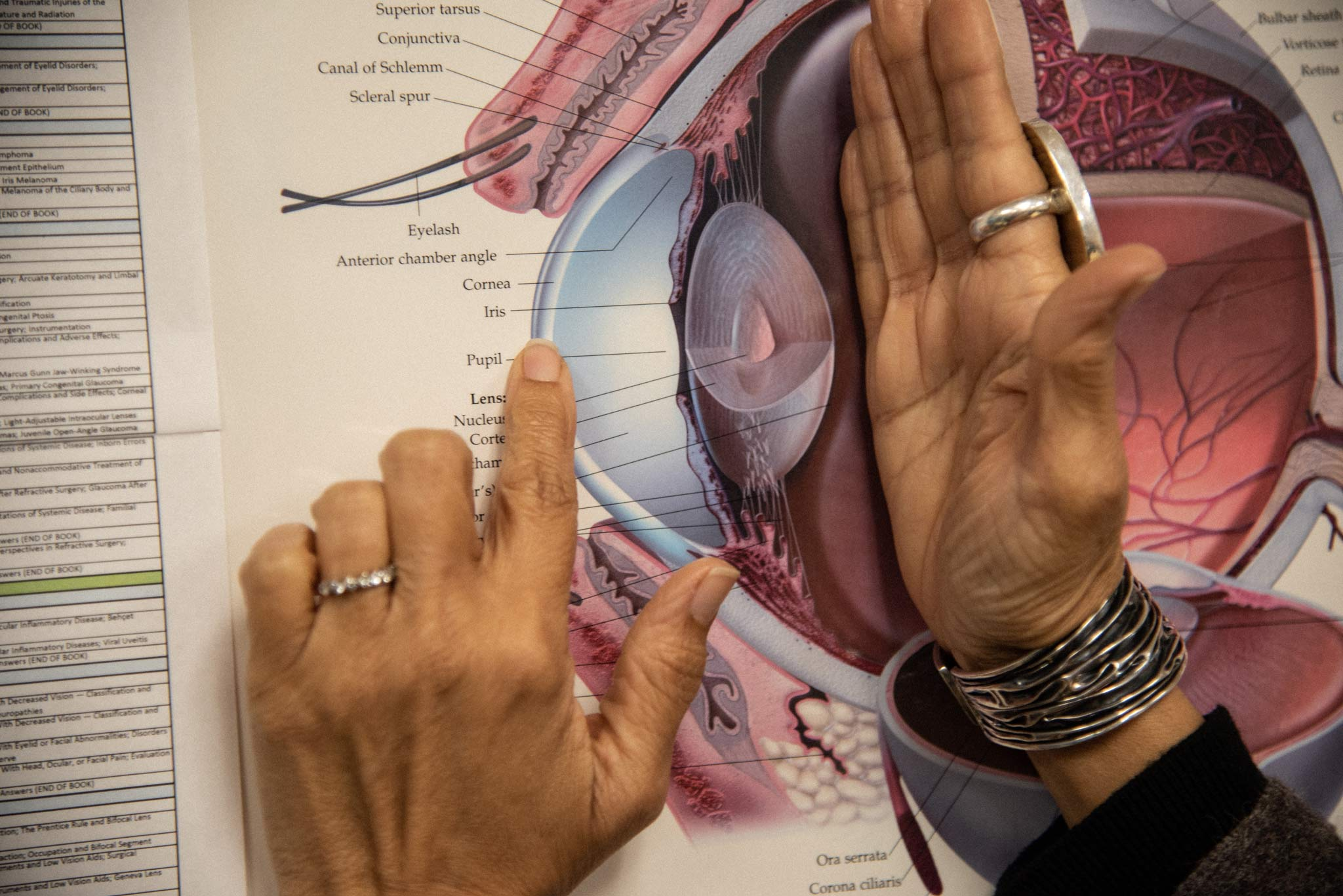Dr. Capoor points to the pupil on an eyeball anatomy chart.