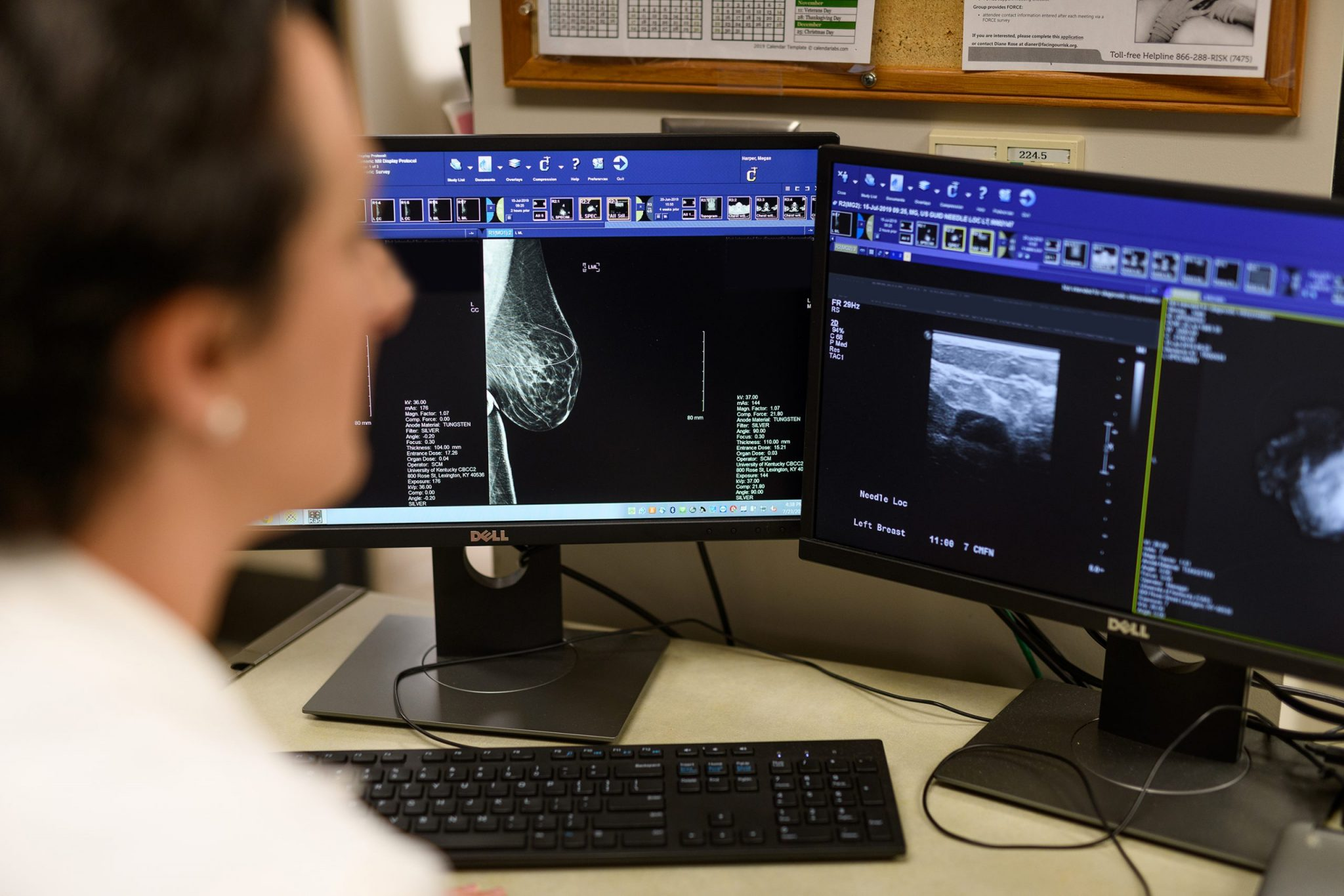 Dr. Marcinkowski reviews a patient's mammogram scans.