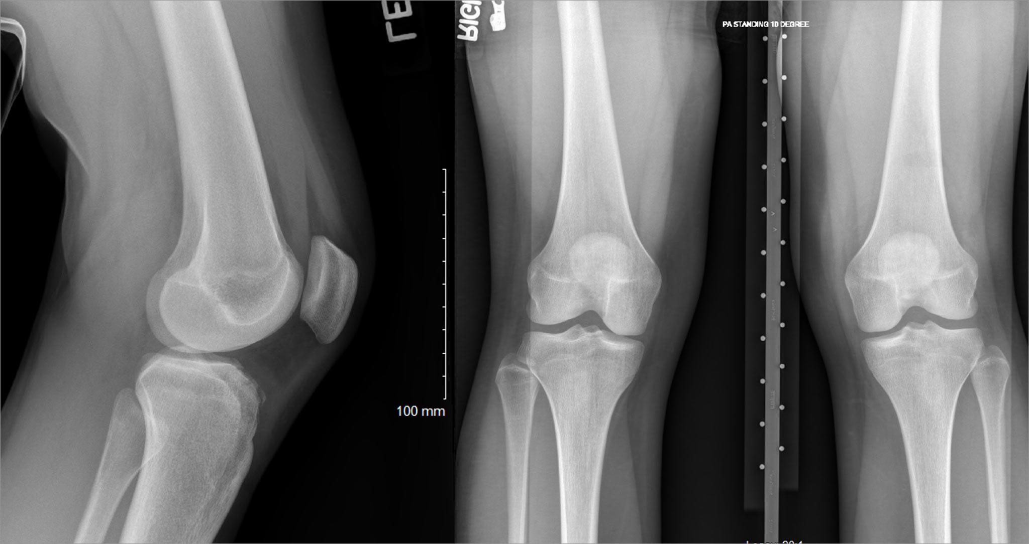 Three side-by-side X-rays of Mac's knee, from the front, back, and side.