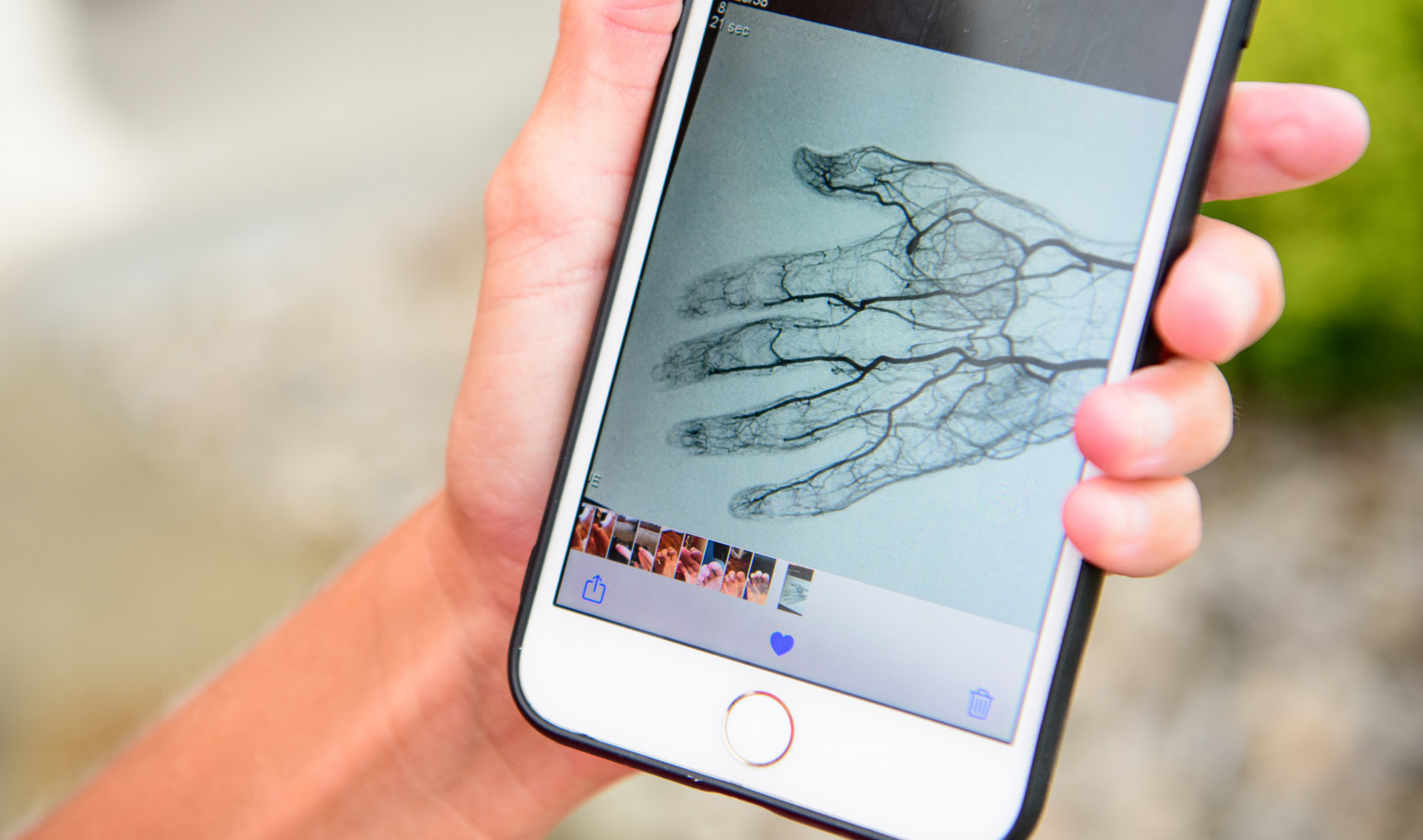 Angela shows an arteriogram—a scan showing the veins and blood flow—of her hand on her phone.