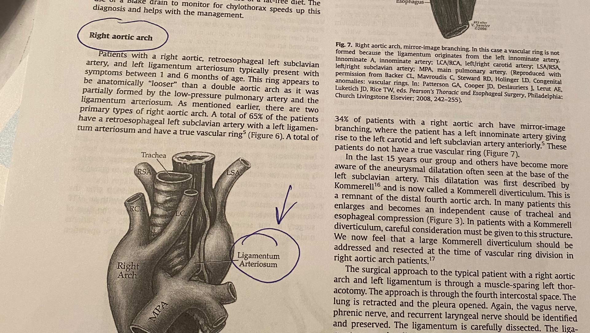 A close-up of a section of text in a printed-out cardiac seminar paper, describing the right aortic arch of the heart, with circled notes and arrows indicating specific places to note.