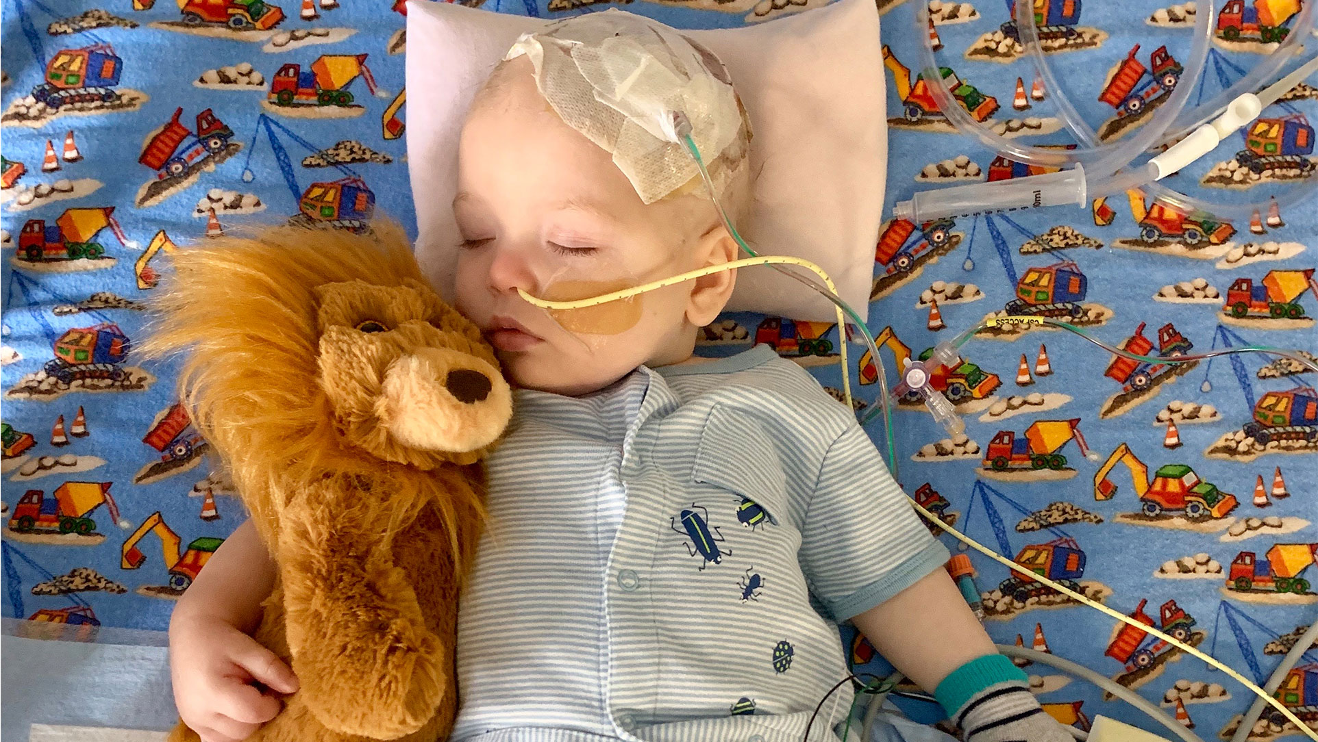 Rory holds his stuffed lion toy as he sleeps. He is wearing a blue striped shirt and has tubes in his nose and taped to his head.