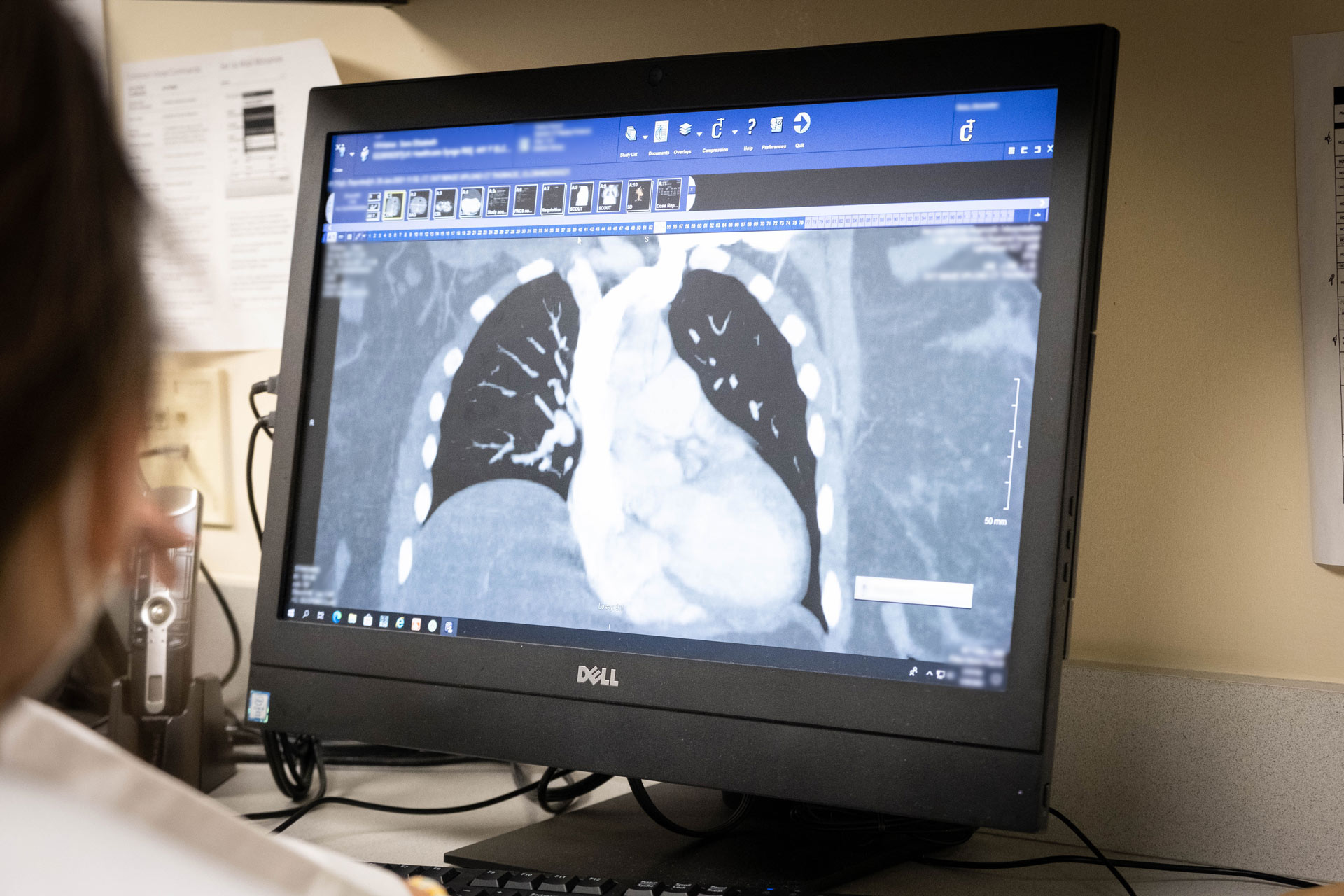 The computer screen displays the scan of a patient's heart as it is being monitored.