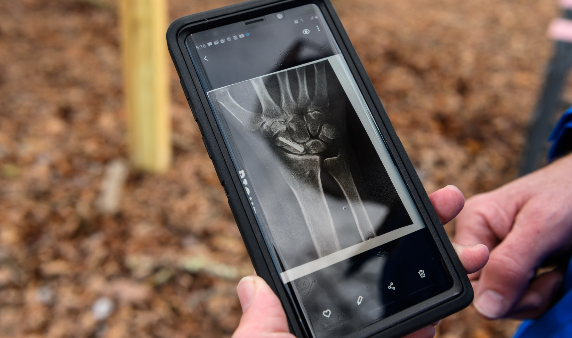 Addison displays an X-ray of his fractured scaphoid bone on his phone.