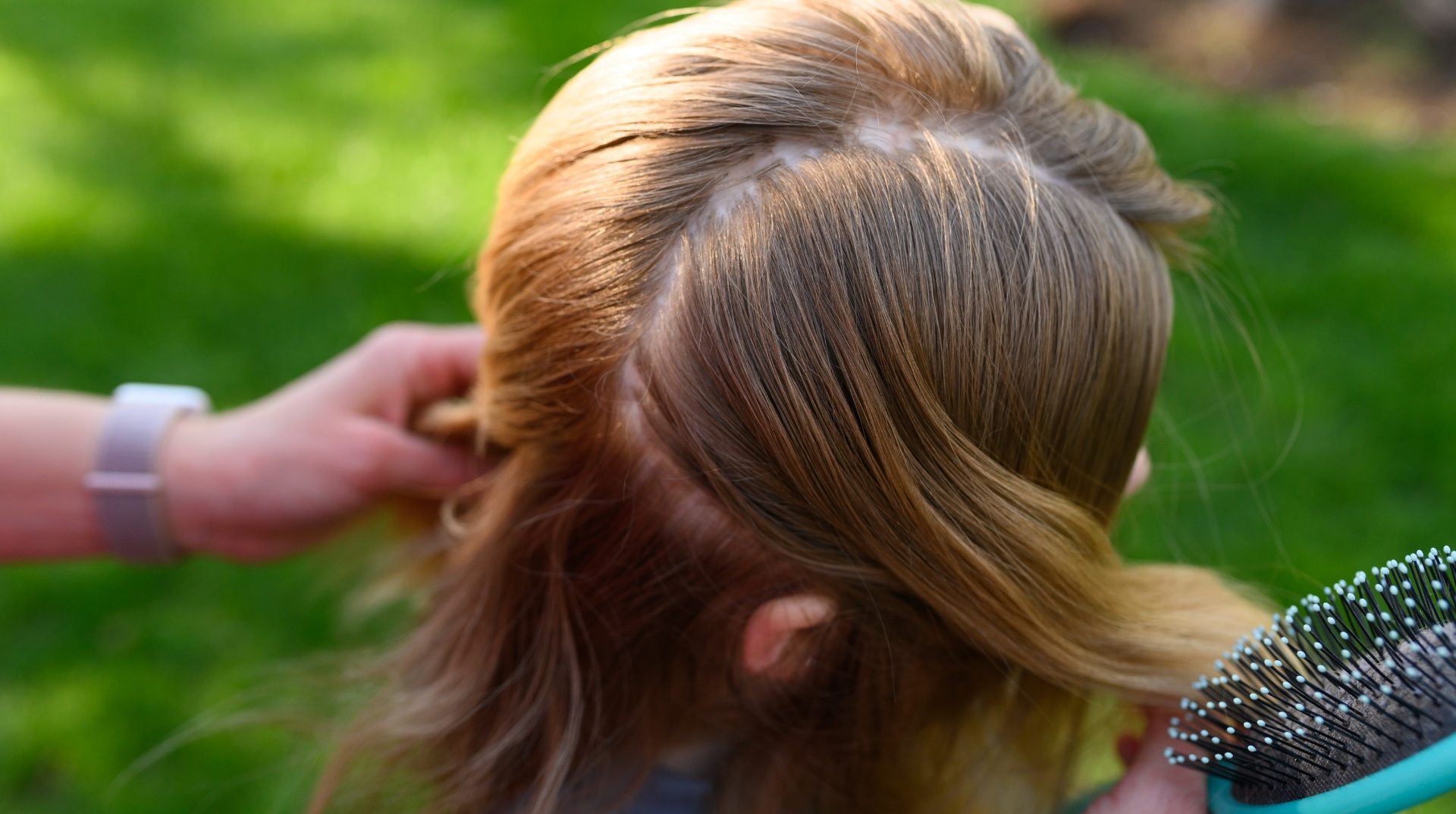 A close-up of Sarah Beth's hair reveals her scar from her surgery, which wraps around one side of her head.